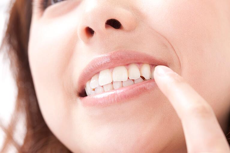 しおみ歯科医院のホワイトニング